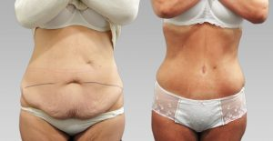 photo avant apres abdominoplastie tunisie